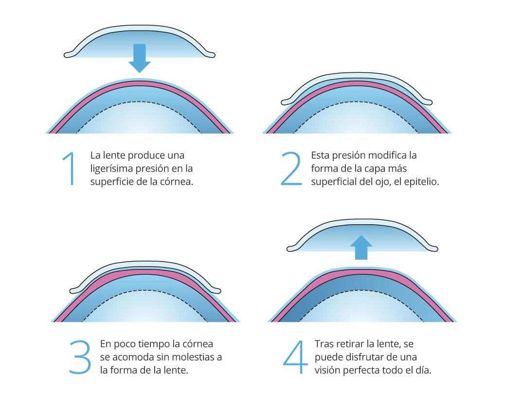 Lentes contacto orto-k tratamiento para el control de miopia. Uso nocturno