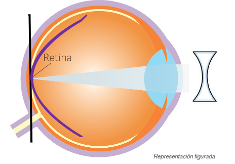 Imagen explicativa de como el tratamiento con LC hace el control de miopio. Actuan para conseguir evitar o frenar el crecimiento de la miopia